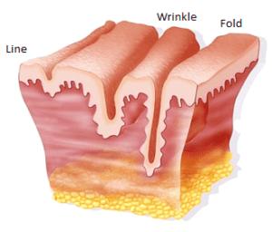 wrinkles3