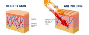 Healthy Skin vs Aging Skin