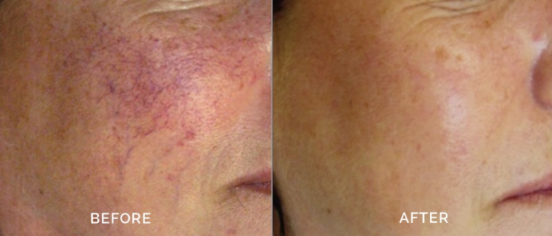 IPL Photofacial for Rosacea in Winnipeg