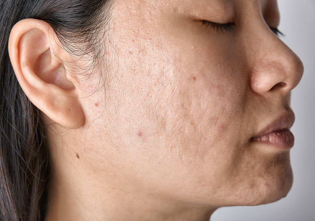 ACNE SCAR TREATMENT IN WINNIPEG