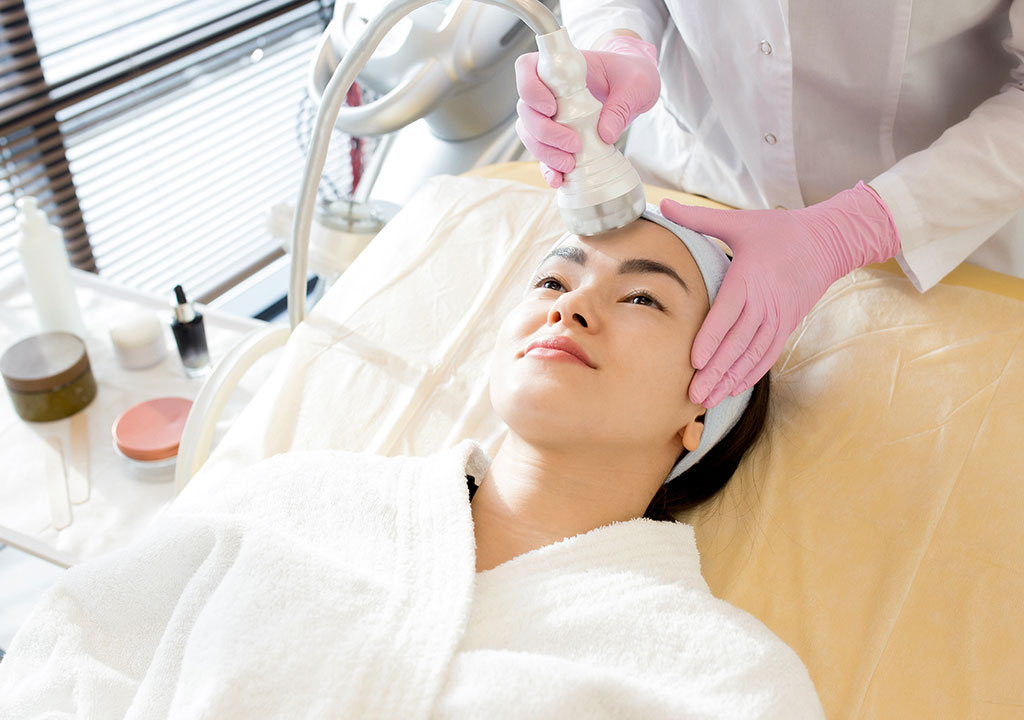 photofacial IPL Treatment