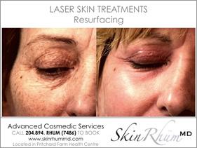 laser-resurfacing
